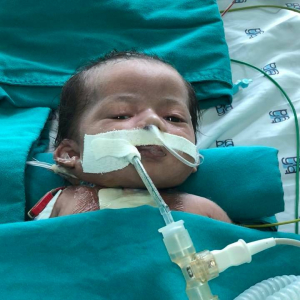 Heart Surgery Charity Program For Thien Manh In Binh Chanh District Ho Chi Minh City
